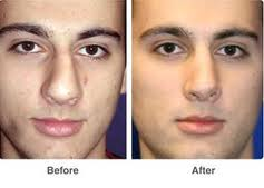 Nose job done by a Surgeon -